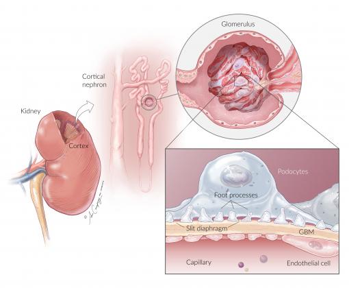 NhKP Kidney