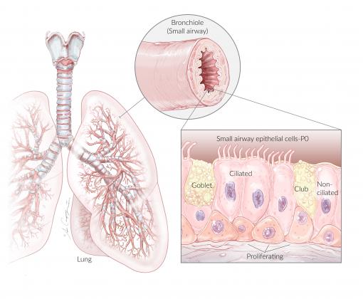 NhSAE-P0 Lung