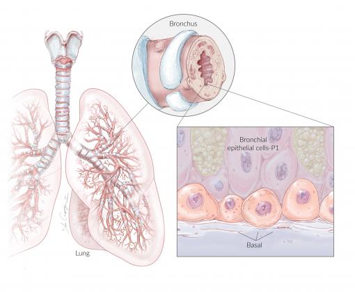 NhBE-P1 Lung